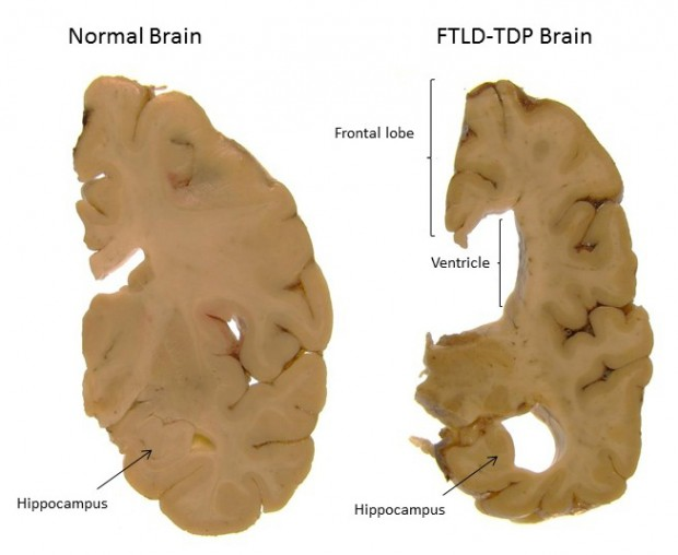 Healthy brain compared to a brain affected by FTD. The FTD brain shows shrinkage of the frontal lobe (at the front of the brain, the region that is affected first in FTD), and of the hippocampus (a brain region important for memory). Brain shrinkage has also caused the ventricle (one of the spaces in the brain that usually contains cerebrospinal fluid) to become larger.