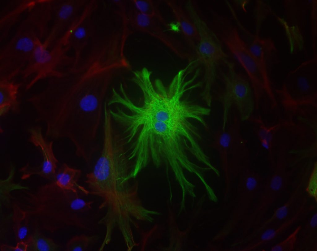 Astrocyte in green (as featured in Biochemical Journal)